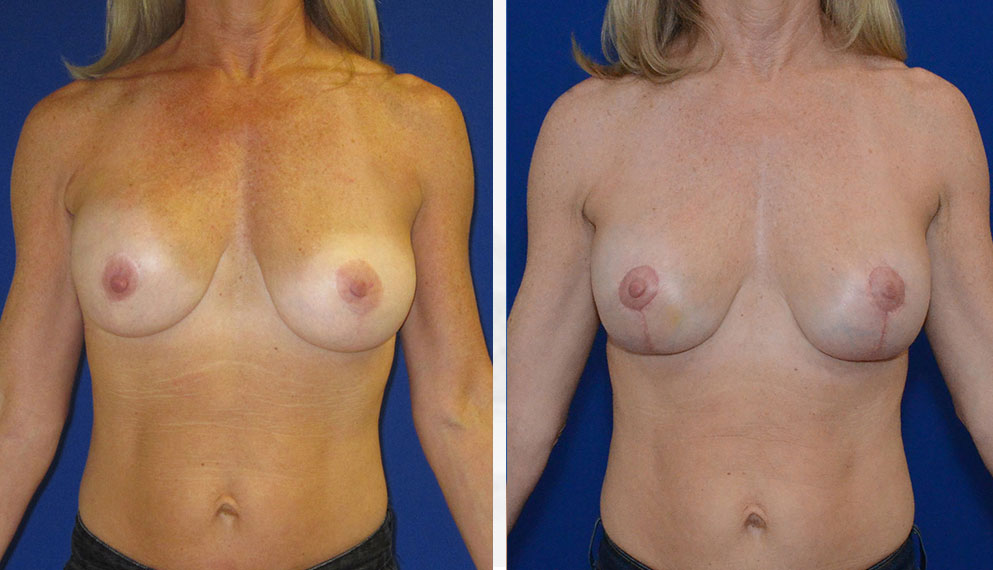 Breast surgery and breast cancer services